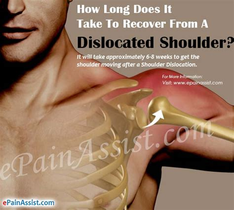 how long does it take to heal a tattoo how does it take to recover from a dislocated shoulder