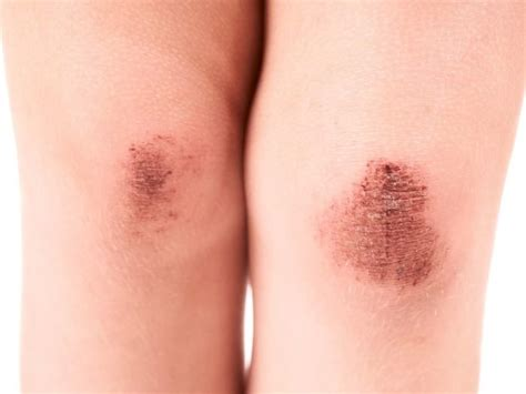 What Is A Rug Burn 8 Best Home Remedies For Abrasions Organic Facts
