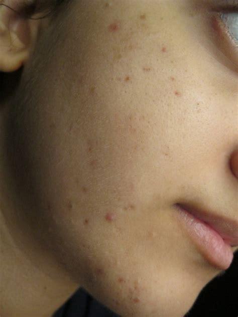 menghilangkan flek hitam  wajah secara alami