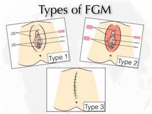 Female circumcision diagram female circumcision diagram nigeria bans