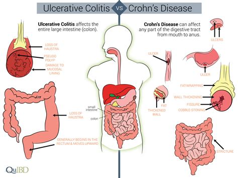 gas x crohns disease differences between crohn s and colitis qu ibd