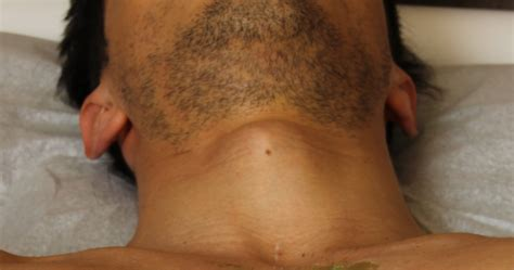 male brazilian hair removal video male brazilian wax the best hair removal service for men