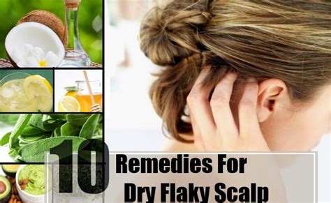 10 home remedies for flaky scalp treatments