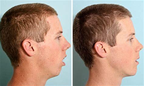 short hair for overbite weak jaw line hair for overbite weak jaw line overbite correction