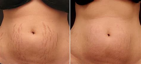 laser treatment for stretch mark removal andrea catton