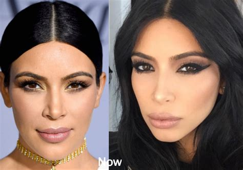 kim kardashian plastic surgery before after pictures 2015 kim kardashian before plastic surgery butt and breast implants