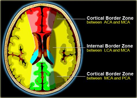 Water Shed Infarct the radiology assistant brain ischemia vascular territories