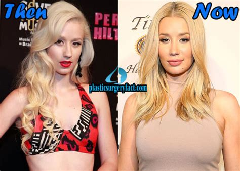 375 best images about celebrity plastic surgery on pinterest celebrity plastic surgery before after 2016 shocking