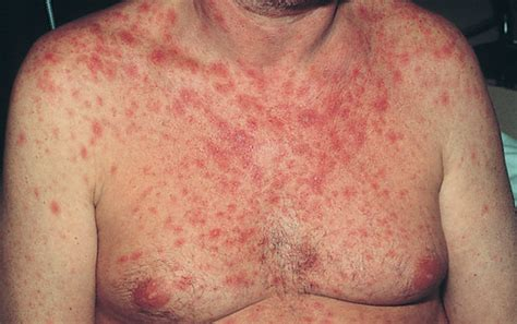 pictures  hiv rash medical pictures  images