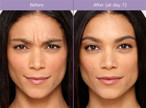 botox before and after photos miami beach south beach