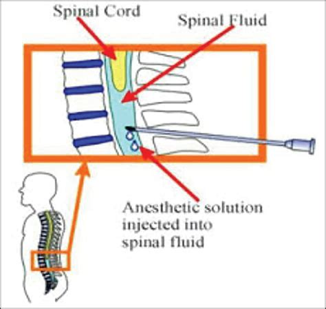 spinal cord pain after c section spinal anesthesia dosing can ibuprofen cause spotting