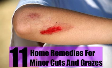 11 home remedies for minor cuts and grazes diy home
