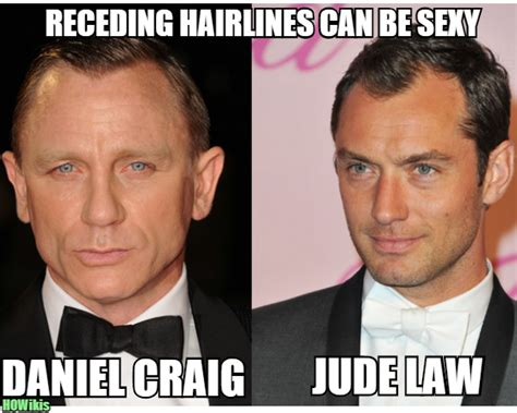 can guys be cute with receding hairline can guys be with receding hairline hairstyles for a