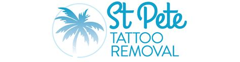 mobile tattoo removal mobile removal