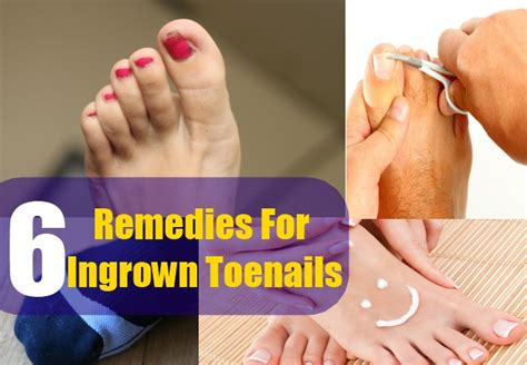 top 6 home remedies for ingrown toenails
