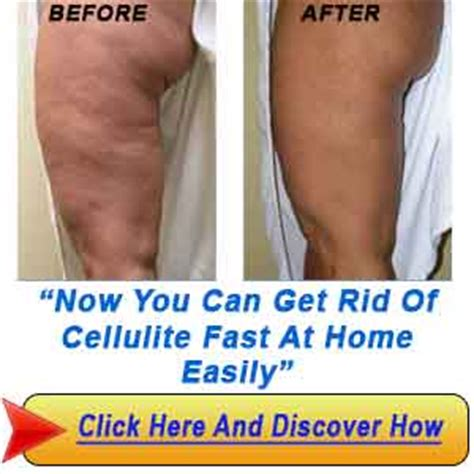 Getting Rid Of Cellulite by Fast Exercises To Get A Six Pack Bigger Stronger Faster