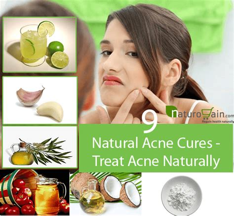 How To Cure Acne Naturally by 9 Effective Acne Cures Treat Acne Naturally