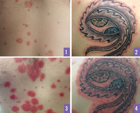tattoos and psoriasis koebner phenomenon associated with guttate psoriasis