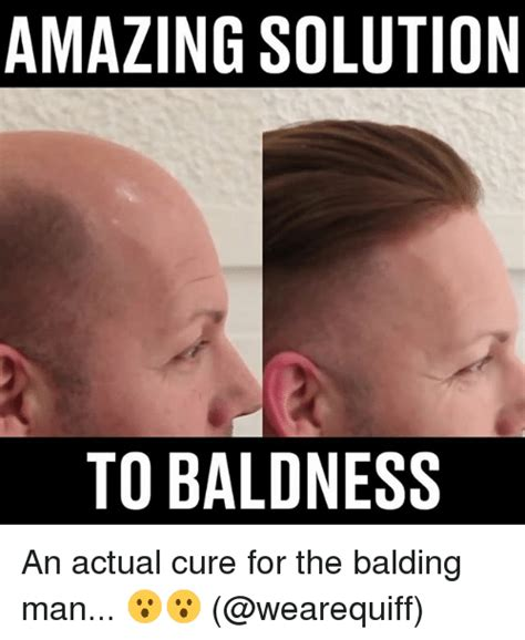Baldness Meme - amazing solution to baldness an actual cure for the
