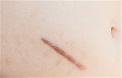 does removing a tattoo leave a scar does removal leave scars 7 tips to prevent scarring