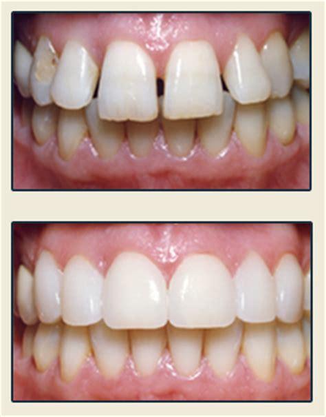 porcelain veneers bravo dental
