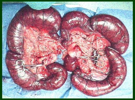puss in uterus pyometra pyo