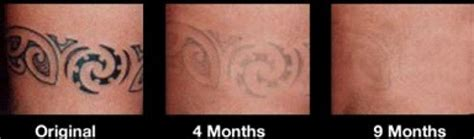 tattoo removal new zealand cost tattoo professional laser removal treatment