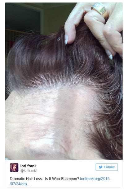 best wen for thin hair wen hair products prompt law suit from women with hair loss