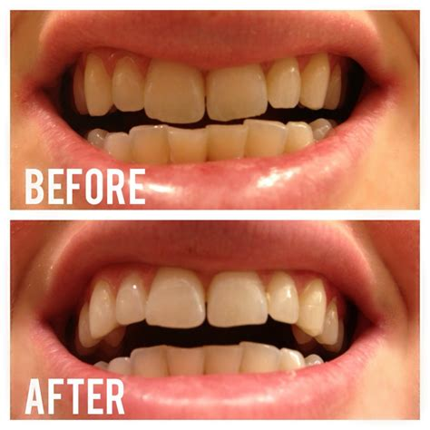 activated charcoal teeth whitening works