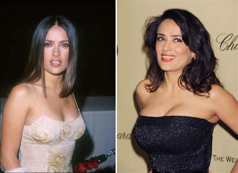 best celebrity breast augmentation images