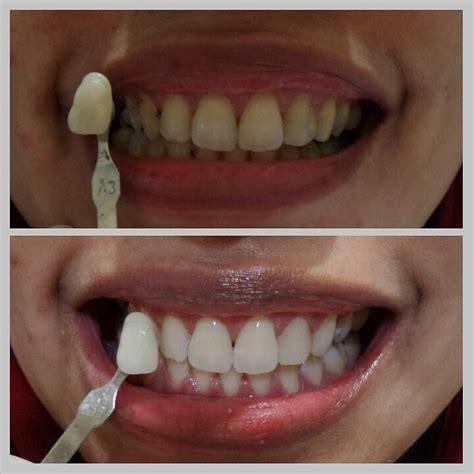 Pemutihan Gigi Bleaching pemutihan gigi bleaching audy dental audy dental