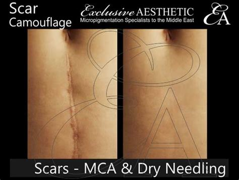 scar removal using mca dry needling exclusive aesthetic