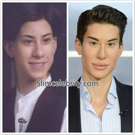 human ken doll before and after the quot human ken doll quot has died of leukemia