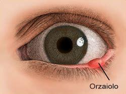come curare l orzaiolo interno sintomi diagnosi e cure per l orzaiolo oculista carlo
