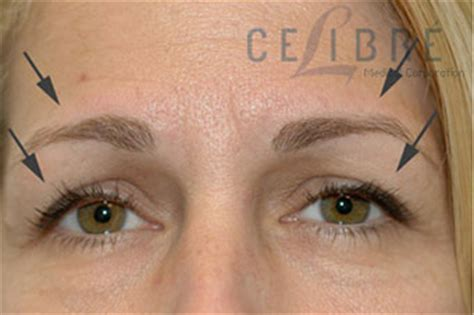 tattoo eyebrows and botox before and after botox brow lift
