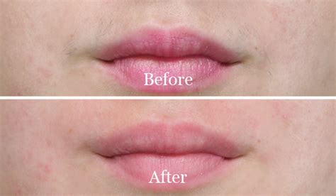 how to wax your own lip at home lip hair removal methods