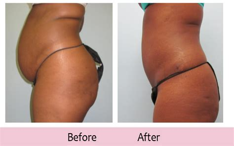 how to tighten loose skin after c section weight loss exercise plan losing weight after c section