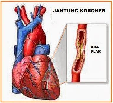 biology  update cenut cenut jantung koroner