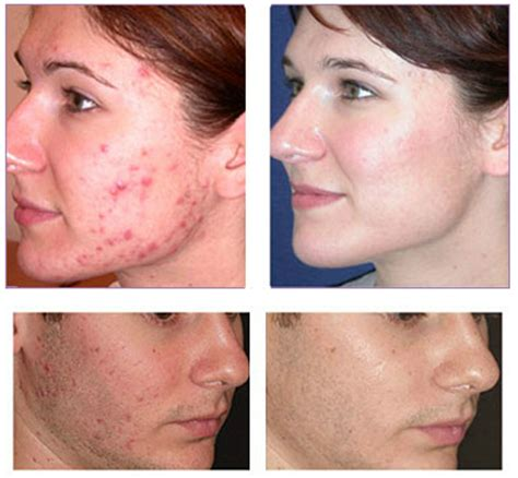 blue light therapy acne before and after laser treatment for acne lasercare cosmetic centers