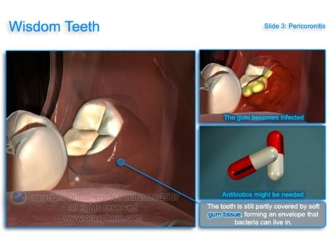 about wisdom teeth removal wavell family dental chermside