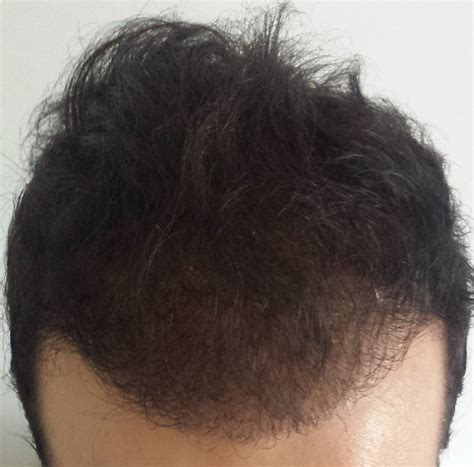 safest hair transplants read laurent s review on hairpalace and fue safe hair