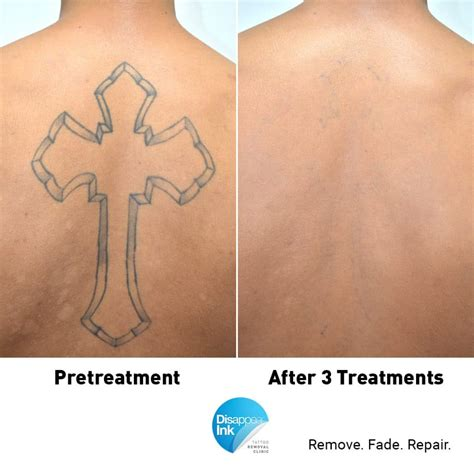 tattoo removal best results want the best laser removal results before after