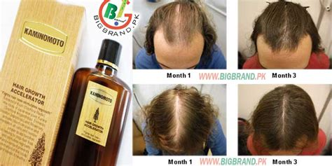 Kaminomoto Hair Growth Reviews kaminomoto hair growth tonic made in japan