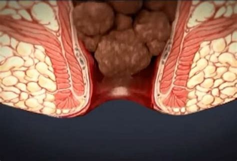 Do Hemorrhoids Cause Blood In Stool by External And Hemorrhoids Piles Causes