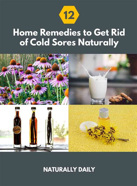 12 home remedies to get rid of cold sores naturally