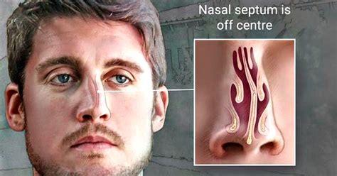 Deviated Nasal Septum Images