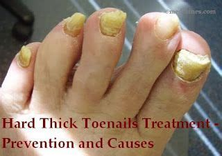 Thick Toenails Home Remedy by 17 Curated Pies Ideas By Vivpren Pedicures Thick