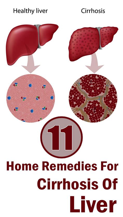 home remedies for liver 95 best images about raising awareness on