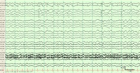 eeg pattern recognition quiz abnormal eeg of seizure pictures to pin on pinterest