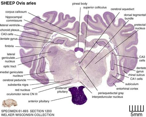 brain cross sections coronal section of sheep brain images